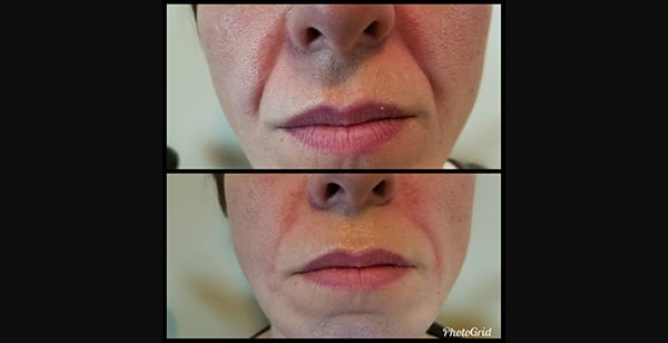Injectables | Juvederm