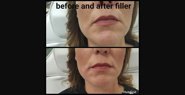 Juvederm | Injectables | Jena Ruxer