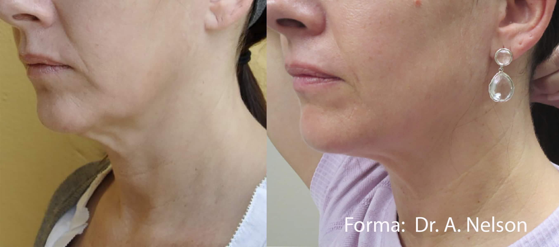 Skin Tightening | Forma