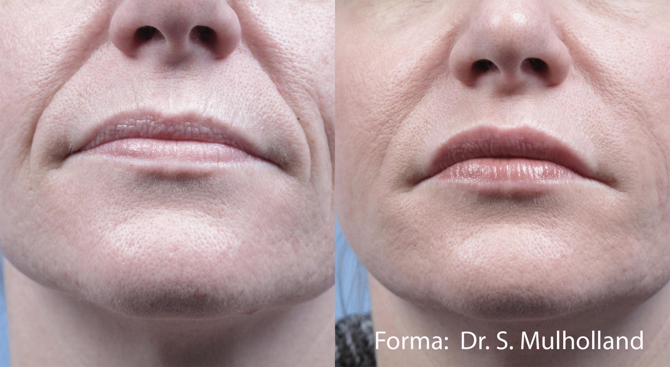 Skin Tightening | Forma | Jena Ruxer | Paducah