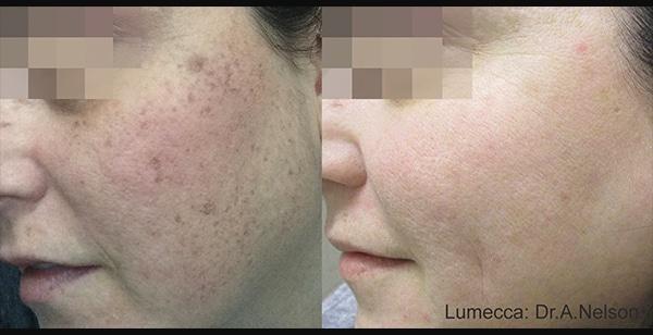 Facial Resurfacing   Jena Ruxer