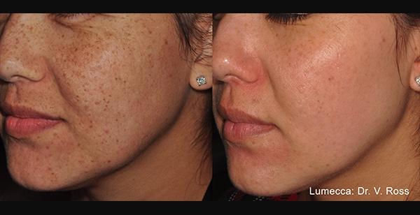 Facial Resurfacing