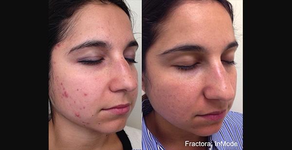 Fractora   Facial Resurfacing